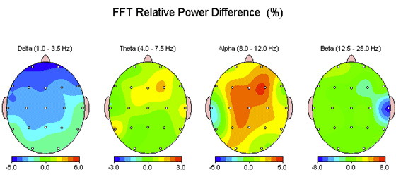 FTT Rrelative Power Difference